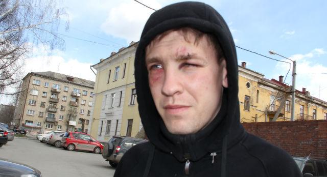 Степан Черногубов через день после избиения
