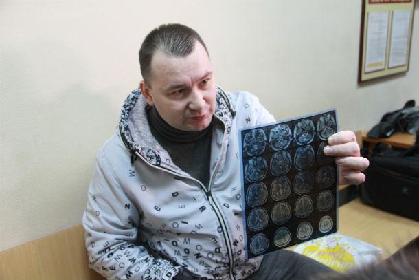 Арбитр Владимир Гук пришел на заседание суда с рентгеновскими снимками сломанного носа Фото Анны Неволиной