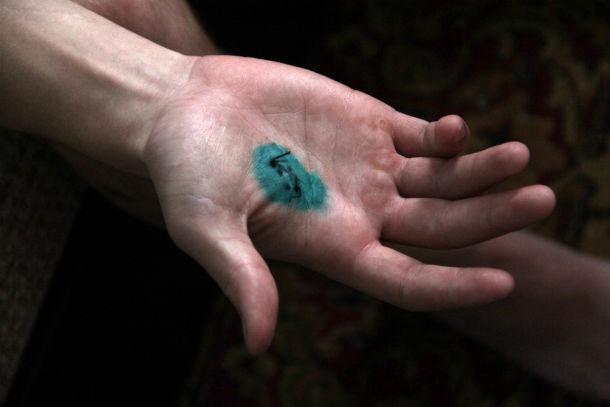 Порез на руке Кости. Падая, он схватился за лезвие, чтобы обидчик не смог ударить его вновь Фото Анны Неволиной