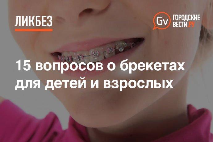 Хочу поставить брекеты на зубы в